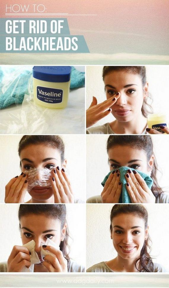 01-how-to-get-rid-of-blackheads