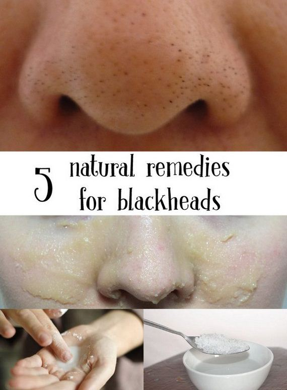 03-how-to-get-rid-of-blackheads