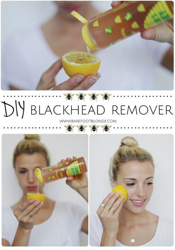 04-how-to-get-rid-of-blackheads