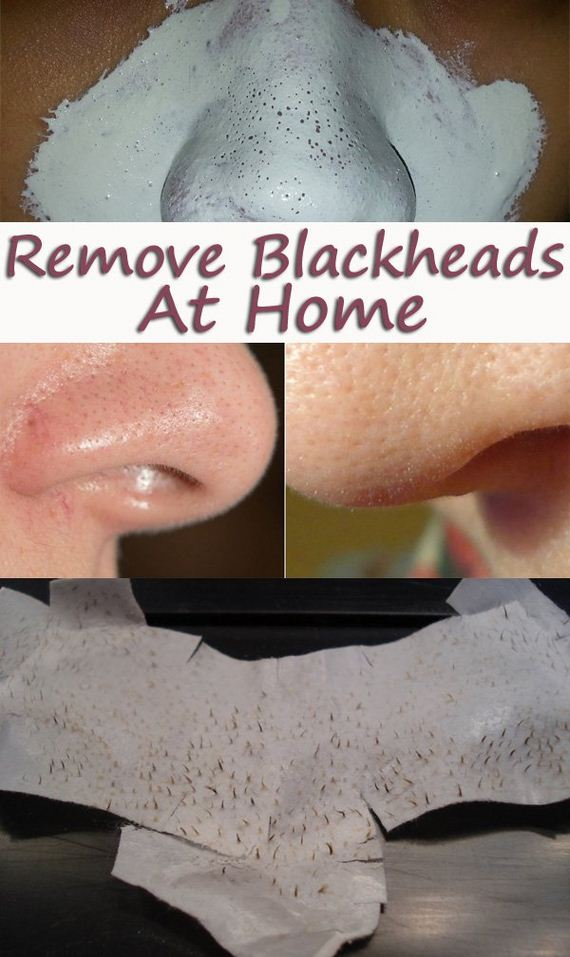 05-how-to-get-rid-of-blackheads