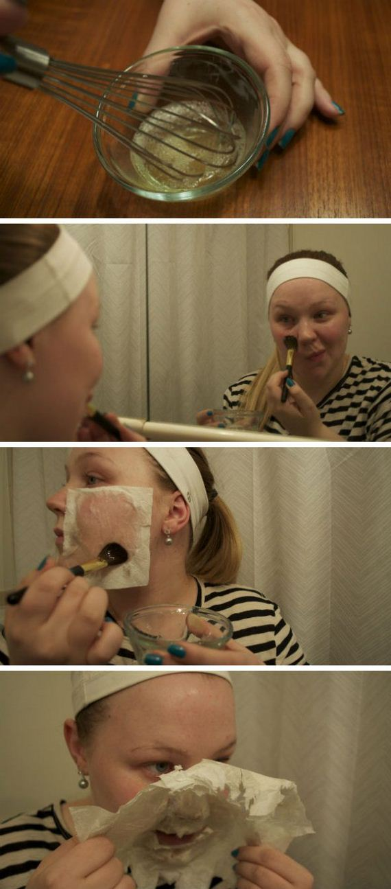 12-how-to-get-rid-of-blackheads